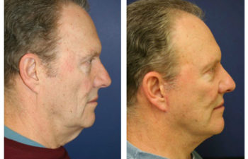 Male patient before and after facelift