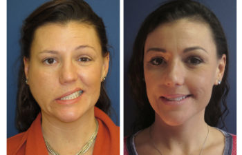 Female patient before and after facial nerve paralysis treatment