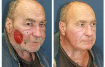 Male patient before and after cheek reconstruction