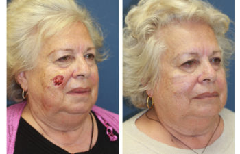 Female patient before and after cheek reconstruction
