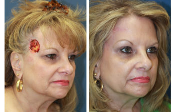 Female patient before and after forehead reconstruction