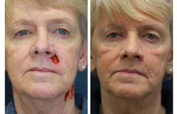 Female patient before and after facial reconstruction