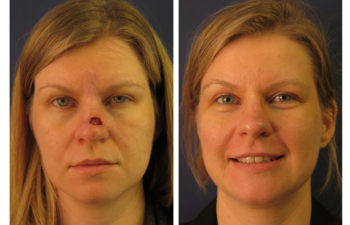 Female patient before and after nose reconstruction