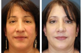 Female patient before and after open rhinoplasty
