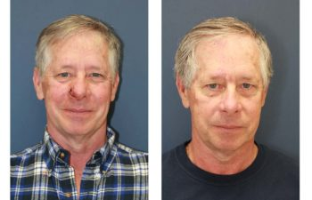 Male patient before and after nose reconstruction