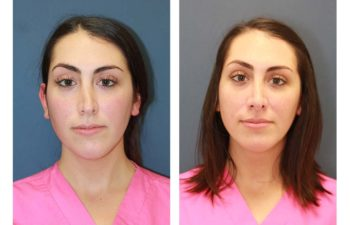 Female patient before and after revision open rhinoplasty