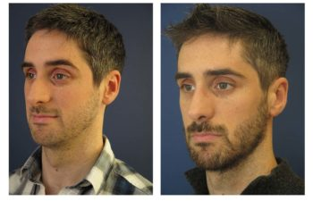 Male patient before and after closed rhinoplasty