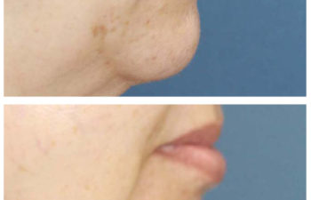 Female patient before and after facial implant surgery