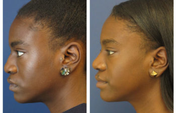 Afro-American Female patient before and after ethnic rhinoplasty
