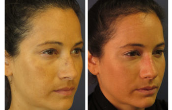 Female patient before and after closed rhinoplasty