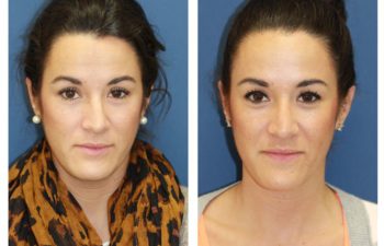 Female patient before and after crooked nose rhinoplasty
