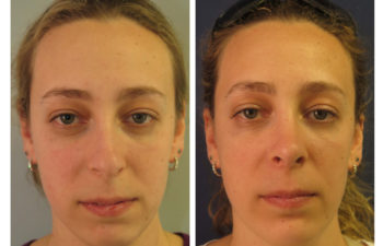 Female patient before and after rhinoplasty and chin implant surgery