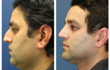 Male patient before and after rhinoplasty