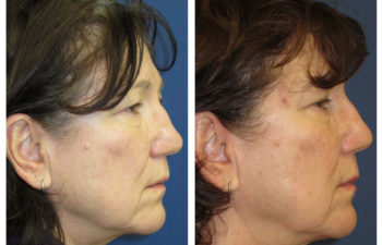 Female patient before and after revision closed rhinoplasty
