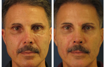 Male patient before and after revision rhinoplasty