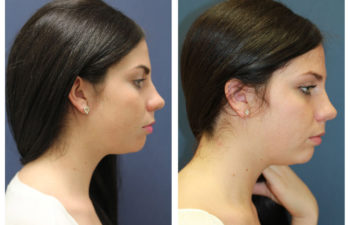 Female patient before and after facial countour reconstruction