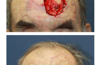 Male patient before and after forehead reconstruction