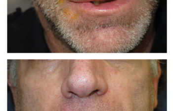 Male patient before and after lip reconstruction
