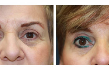Patient before and after upper and lower blepharoplasty