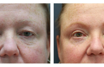 Man before and after eyelid surgery