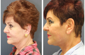 Face Neck Lift before and after