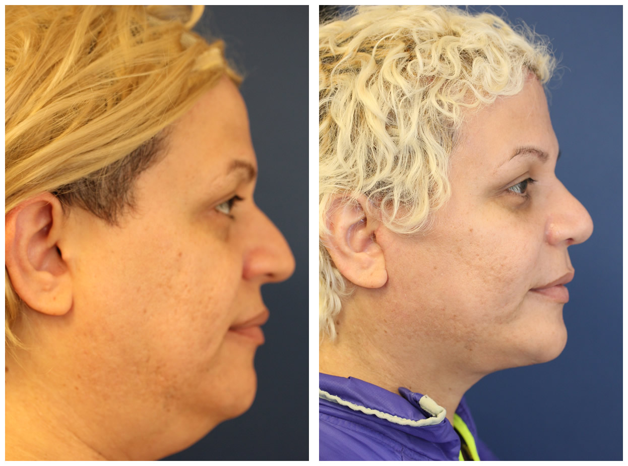 NYC Facial Feminization Before and After Pictures | Staten