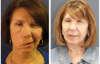 Woman before and after facial stretching