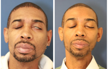 Male before and after facial stretching