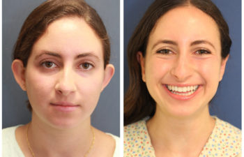 Young girl before and after nose surgery