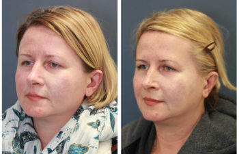 Woman before and after nose surgery