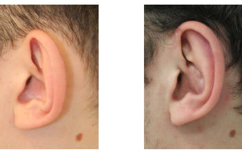 Boy before and after ear surgery