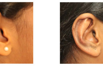 Young girl before and after ear surgery