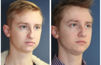 Young man before and after nose surgery