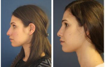 Girl before and after nose surgery
