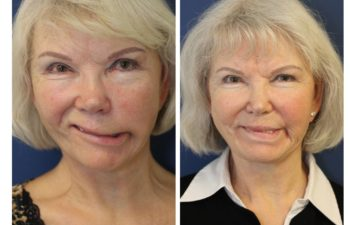 Woman before and after Nerve Grafting and Transfer