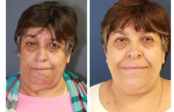 Woman before and after Selective Neurolysis, Directed Nerve Transfer, Face/Neck Lift