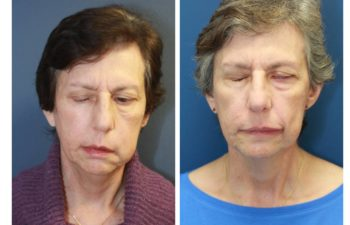 Woman before and after Comprehensive Facial Reanimation