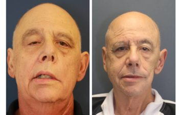 Male before and after Comprehensive Reanimation after Head and Neck Cancer