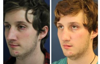 Man before and after nose surgery