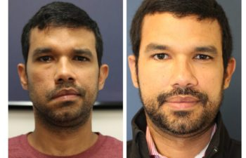Male before and after Selective Neurolysis and Nerve Transfer