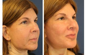 Face Naeck Lift before and after