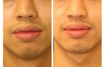 Male patient before and after facial implant surgery